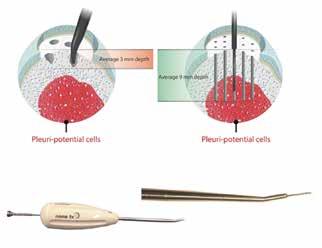 Knochenmarkstimulation der neuesten Generation. Mit einer langen, dünnen Nadel werden die tieferen stammzellreichen Schichten erreicht, ohne die Knochenplatte zu destabilisieren.
