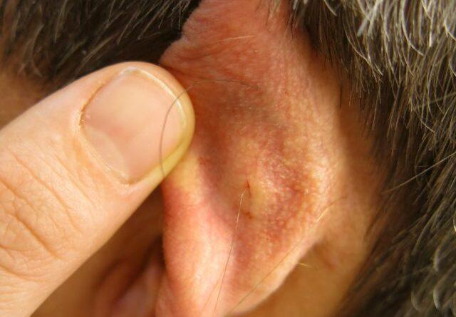 Prothesensteuerung per Ohrmuskulatur