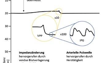 Abb.4 Beispielsignal für IPG.