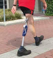 Abb.5Freiheit im Alltag mit im Knochen verankerter Osseointegrationsprothese.