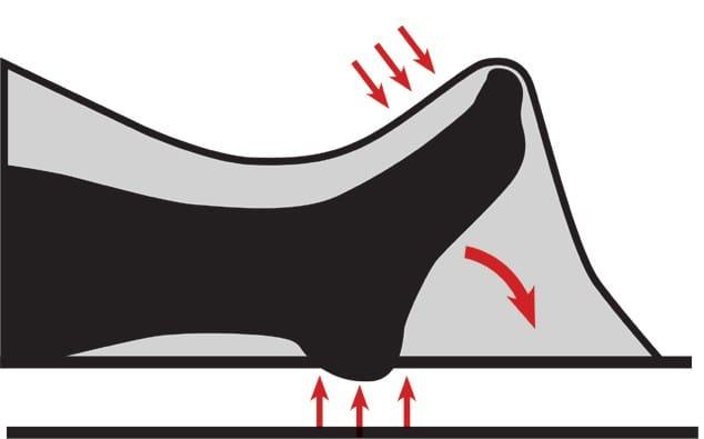 Die Spitzfußstellung wird durch das Aufliegen der Bettdecke auf dem Fuß begünstigt.