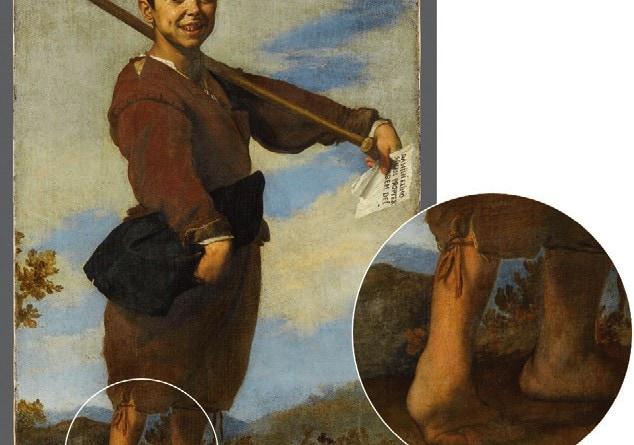 """Fußfehlstellung bei Halbseitenlähmung rechts. Das Gemälde von Jusepe de Ribera (um 1590–1652) aus dem Jahr 1642 (Louvre, Paris, Inventar-Nr.MI893, Öl auf Leinwand, 93 ×164cm) ist unzutreffend mit """"Der Klumpfuß"""" betitelt."""