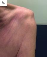 Subluxierte Schulter. a) Die Subluxation des Schultergelenkes stellt bei einer Vielzahl von Patienten eine zusätzliche schmerzhafte Herausforderung dar.