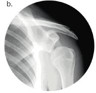 ubluxierte Schulter. b)Röntgenbild einer subluxierten Schulter.