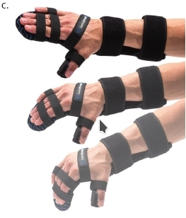 Versorgung der oberen Extremität; c) Wirkung der Orthese: kontruktionsbedingtes Nachgeben bei Tonusänderungen und Zurückführen der Finger in die Streckung.