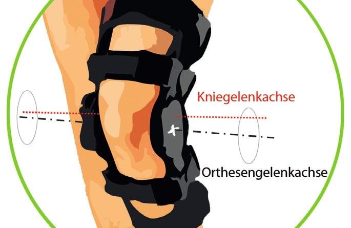 Inkongruenz von Knie- und Orthesengelenkachse bei einer üblichen Knieorthese.