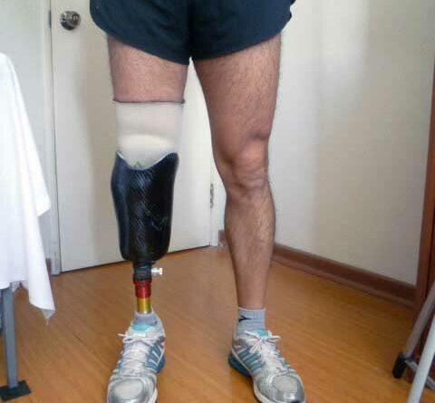 Unterschenkelprothese