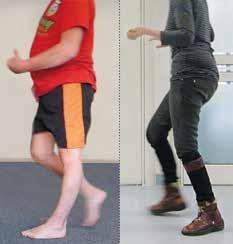 Voreinteilung der Patienten (n = 10) in eine Gruppe mit hyperextendiertem Knie (links) und eine Gruppe mit hyperflektiertem Knie (rechts).