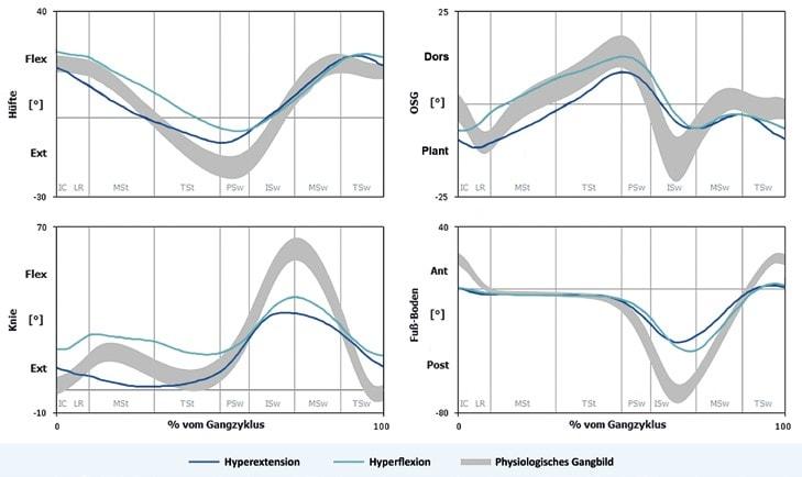Verläufe von Hüft-, Knie-, OSG- und Fuß-Boden-Winkel des hyperextendierten Gangtyps (blau) und des hyperflektierten Gangtyps (türkis) im Vergleich zur physiologischen Referenzgruppe (grau).