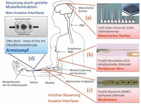 Möglichkeiten der intuitiven Steuerung einer Handprothese entlang der motorischen Bahn, nach [efn_note]Hoffmann K-P, Dietl H. Handprothesen: Nach dem Vorbild der Natur. Deutsches Ärzteblatt, 2010; 107 (45): 11-14[/efn_note]. Die invasiv applizierten Elektroden sind (a) im motorischen Kortex, (b) im peripheren Nerv und (c) epimysial platziert. (d) State of the Art ist die Erfassung des EMG vom Armstumpf mit Oberflächenelektroden.