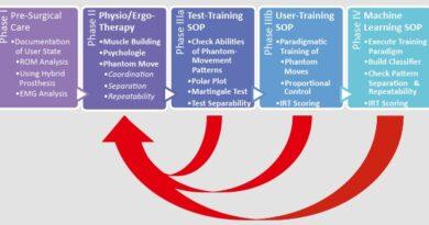 Das Amputation-Care-Konzept setzt sich mit dem gesamten Amputations-/Versorgungsprozess auseinander und besteht aus vier Phasen: I) vorchirurgisch, II) therapeutisch, III) Training, IV) Maschinenlernen.