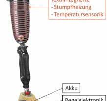 Prinzipdarstellung einer Prothese mit Temperaturregulierung durch die Integration von textiler Temperatursensorik und textiler Heizstruktur.