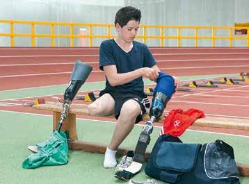 Wechsel von der Alltags- zur Sportprothese.