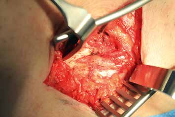 Nervus cutaneus femoris lateralis (Leiste) intraoperativ über 3 cm aus der Faszie freigelegt mit sichtbaren Schnürzonen und Auftreibungen.