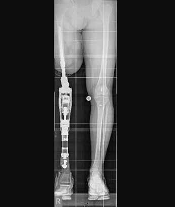 a.–p.-Röntgenbild Zweibeinstand nach Implantation einer Endo-Exo-Femurprothese.