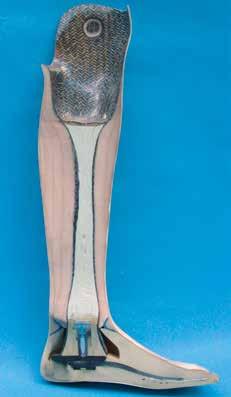 Schnitt durch eine Unterschenkelprothese mit Balsaholzkern.