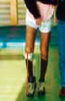 Standbild aus einem Video: Der Fuß hängt medial auf der Innenseite unter dem Knie. Der Patient konnte nicht mehr frei gehen.