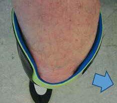 Rechtes Bein in 90° Beugung.