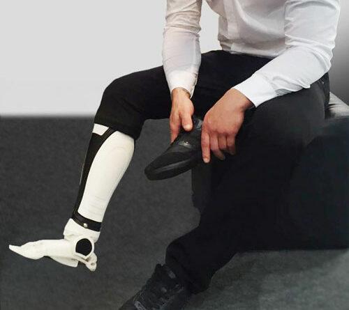 Versorgung eines Patienten mit einer additiv gefertigten Prothese aus Polyamid.