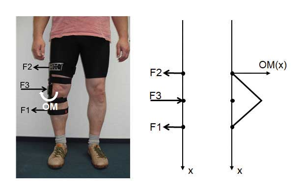 KO-Grundprinzip: Durch das bekannte 3-Punkt-Wirkprinzip wird knienah ein abduzierendes Orthesenmoment (OM) generiert.