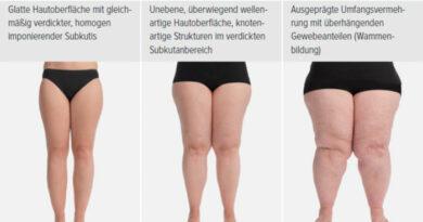 Morphologische Stadieneinteilung des Lipödems.