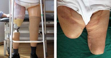 Patient (73,4 Jahre): OS-Amputation rechts (2011), Knieexartikulation links (2006) aufgrund von pAVK und Diabetes mellitus Typ 2.