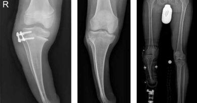 Röntgenaufnahmen eines Patienten mit transversaler Dysmelie des Unterschenkels und varischer Achsfehlstellung.