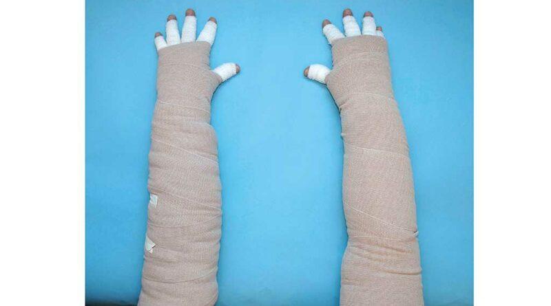 """Vergleich unruhiger Polsterungen, bandagiert: """"Muff"""" (a); unruhiger Lamellenschaumstoff (b)."""