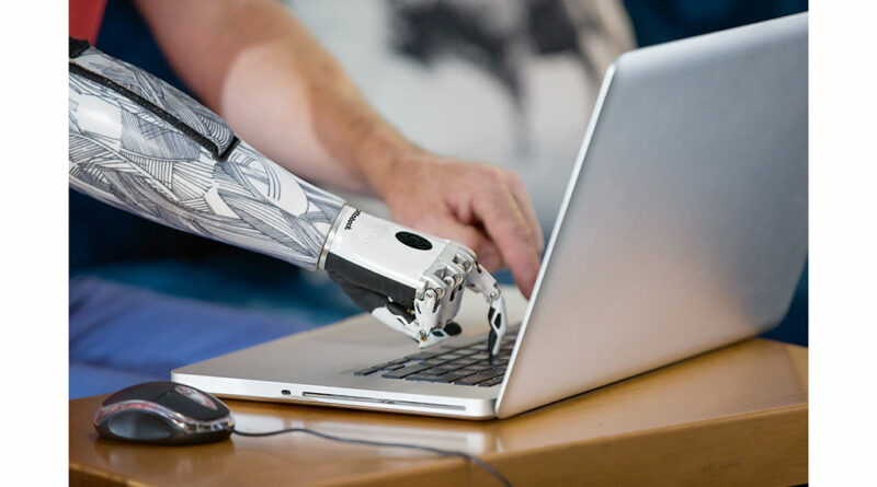 Bidirektionale Sensoren sollen dafür sorgen, dass sich bionische Prothesen noch besser dem Körpergefühl der Patient:innen annähern. An der MediUni Wien wird intensiv an der Prothetik der Zukunft geforscht.