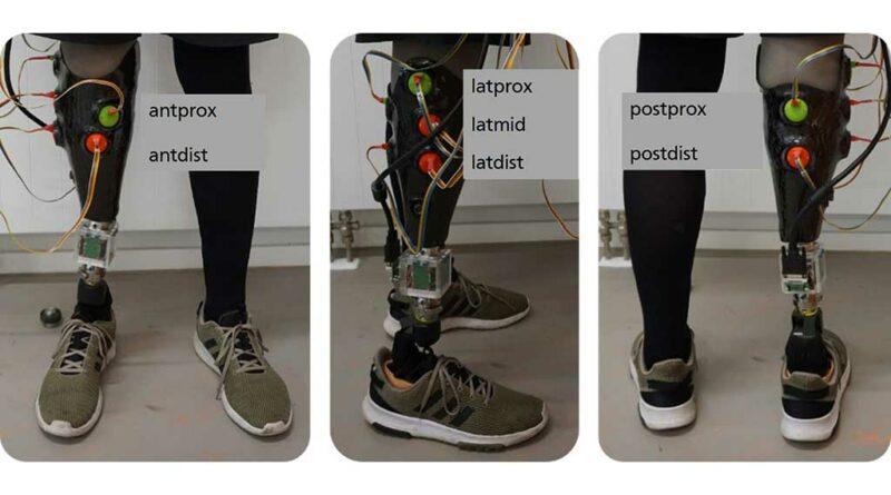 Messaufbau mit Benennung der 7 Relativbewegungsmessstellen: anteriore (a), laterale (b) und posteriore (c) Ansicht (Noll V et al. A Sensor Array for the Measurement of Relative Motion in Lower Limb Prosthetic Sockets. Sensors, 2019; 19 (12): 2658. https://www.mdpi.com/1424-8220/19/12/2658 (Zugriff am 16.06.2021)).
