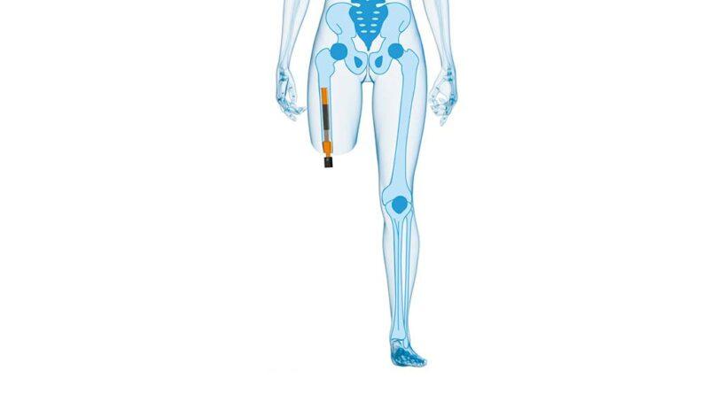 """Transkutanes osseointegriertes Prothesensystem """"ILP Aschoff/Grundei"""" am transfemoral amputierten Patienten. Grafik: pro-samed, 2020"""